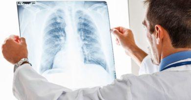 Bulgaristan'da tüberküloz hastalığı için ücretsiz muayeneler yapılacak
